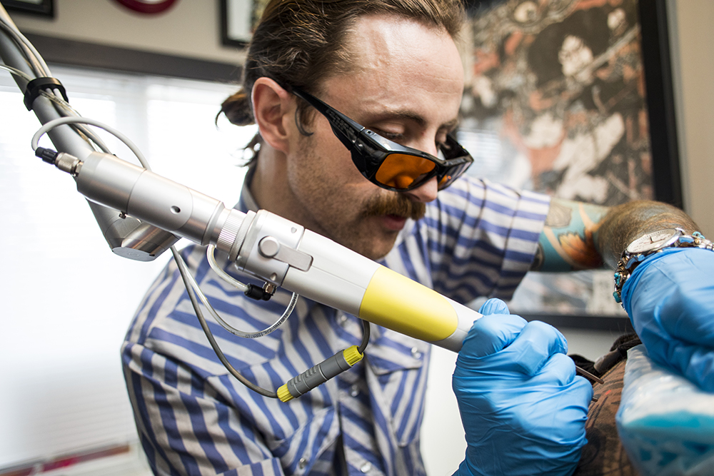 Joseph Downing during a tattoo removal session // Photo by Tj Turner