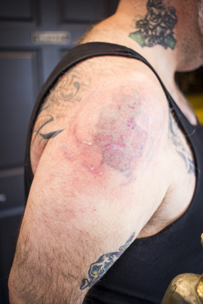 Pomazi's shoulder after his most recent session with Downing // Photo by Tj Turner